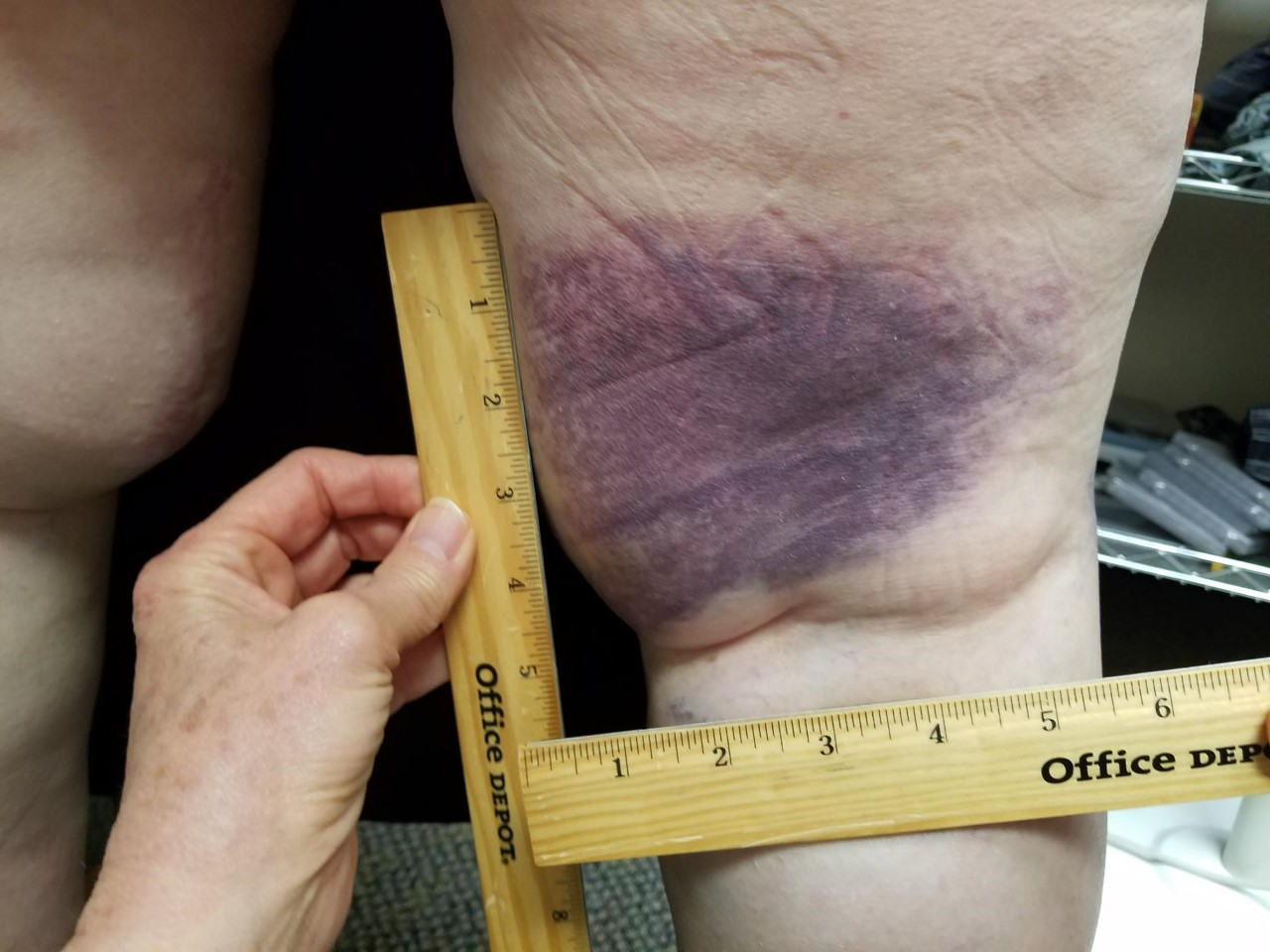 measuring patient's leg bruising with rulers, deep oscillation therapy